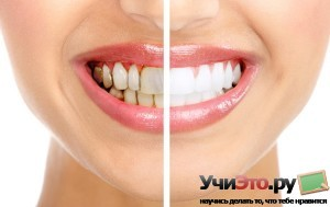 Как избавиться от зубного камня в домашних условиях? +видео уроки